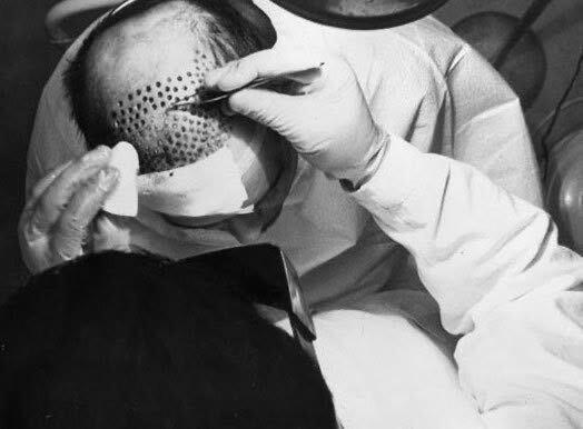 Hair Restoration Specialist New Jersey